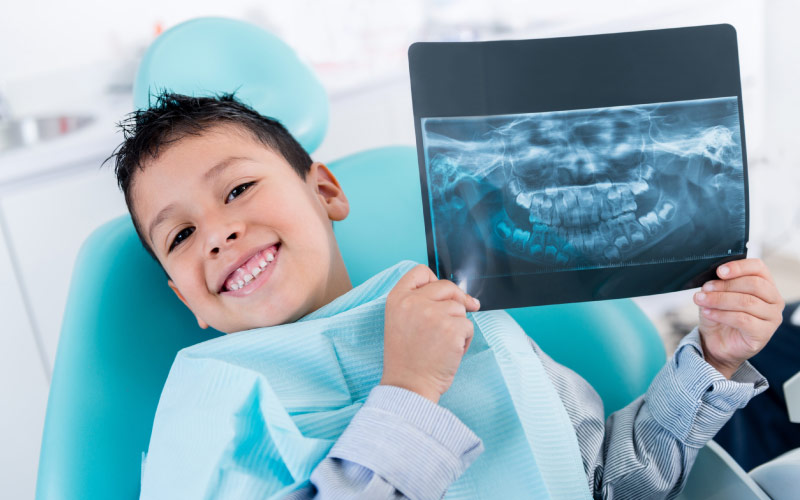 boy holding up X-ray showing benefits of cavity nutrition counseling